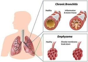 Buy Chronic Obstructive Pulmonary Disease Drugs Online in Canada FOR SALE