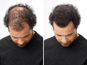 Proven Temporary Hair Loss Solution