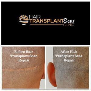 Hair Transplant Scar Repair SERVICES