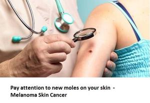 Pay attention to new moles on your skin Melanoma Skin Cancer SERVICES