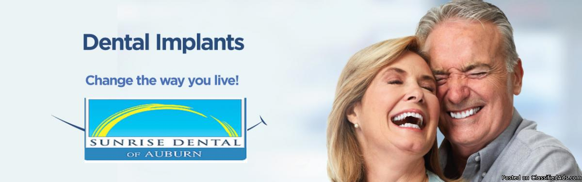 Dental Implants in Auburn | The Best Care, at the Best