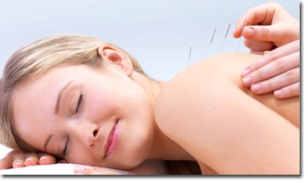 Richmond Hill Acupuncture Treatment