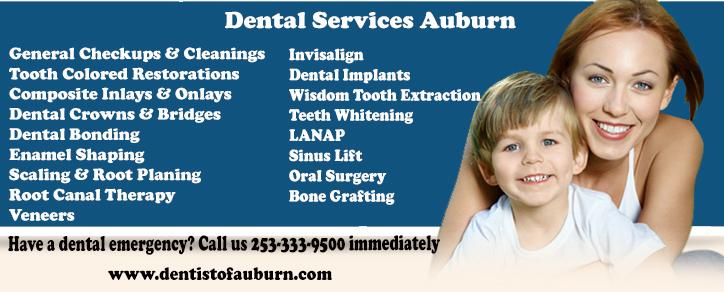 Affordable Dental Services auburn | Cosmetic Dentistry