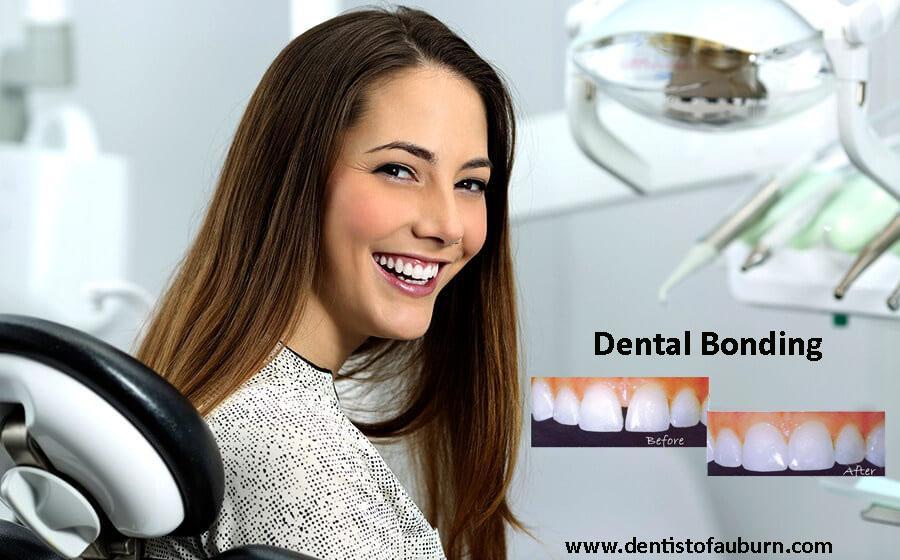 Dental Bonding | affordable cosmetic dentistry Auburn |