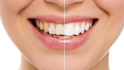 Best Dentist in Russell Ontario | Bright Dental Centre