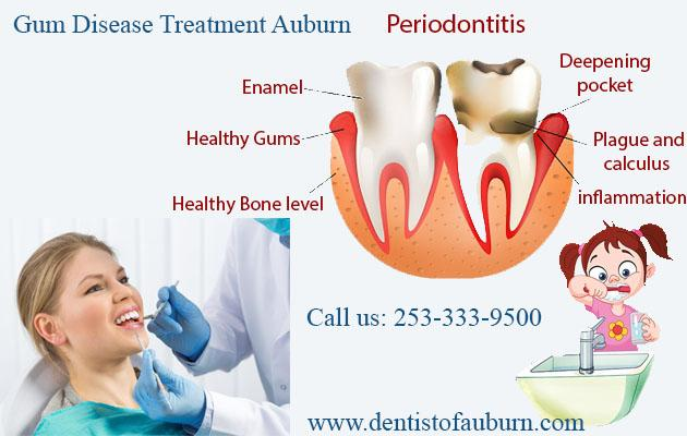 Gum Disease Treatment Auburn | Dental implants Near Me WA