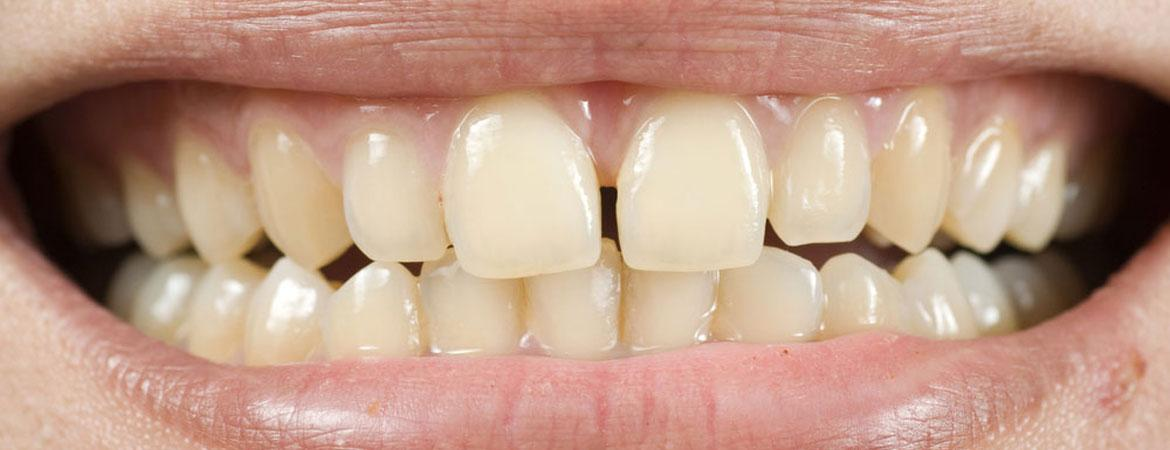 Tooth Enamel Loss Prevention Tips